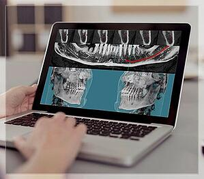 Dental Image Portfolios - Beam Readers