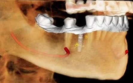 CBCT-Evaluation-for-Implant-Dentistry